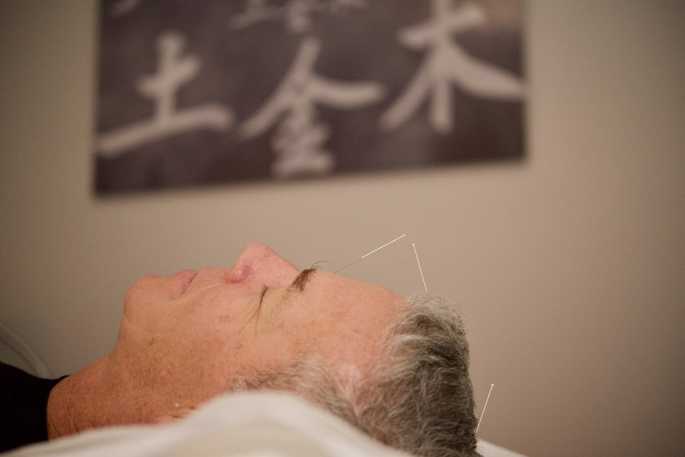Relaxation at Acupuncture Zen