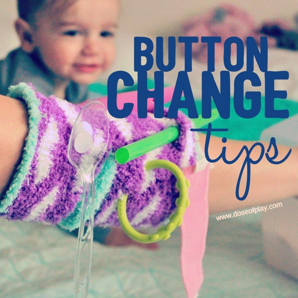 Button change tips #tubie #gtube #gtubefed #feedingtube #gtubebutton #childlifespecialist #childlife #tubietips