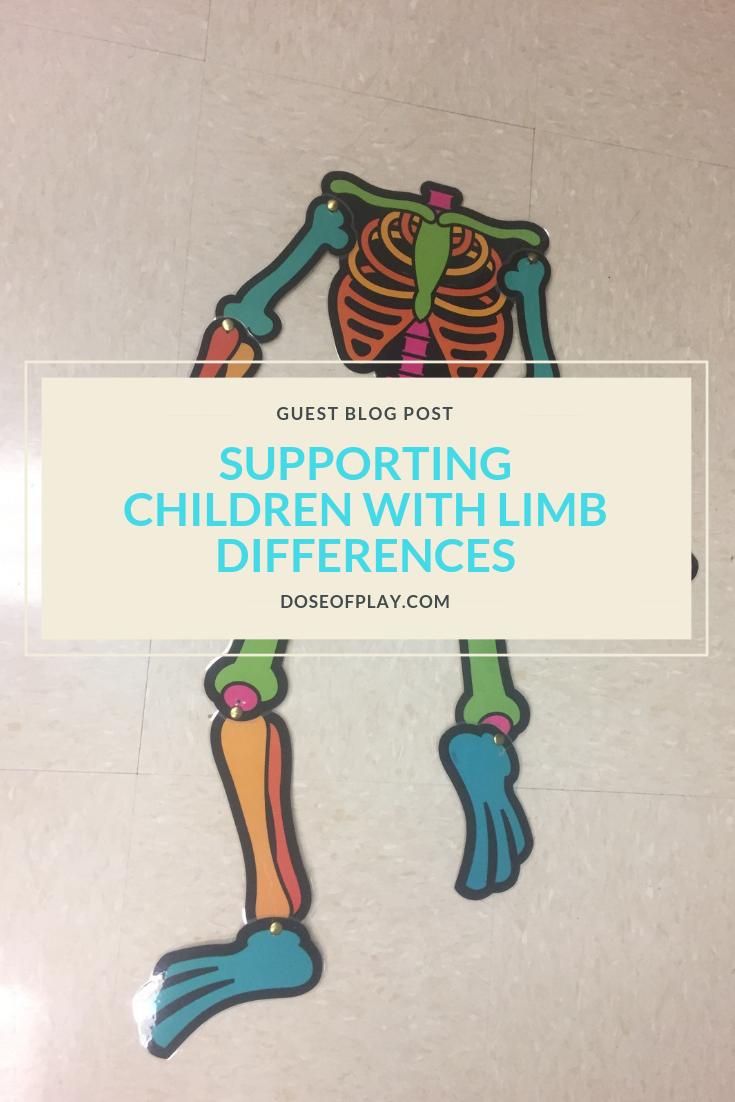supporting children with limb differences #doseofplay #limbdifferences #childlife #childlifespecialist #orthopedics #howtopreparekidsfororthosurgery #orthosurgery #pedsortho #childrenshospital