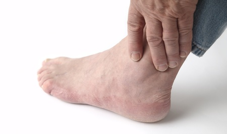 How To Treat Rheumatoid Arthritis In Your Feet Ej Nemet Dpm