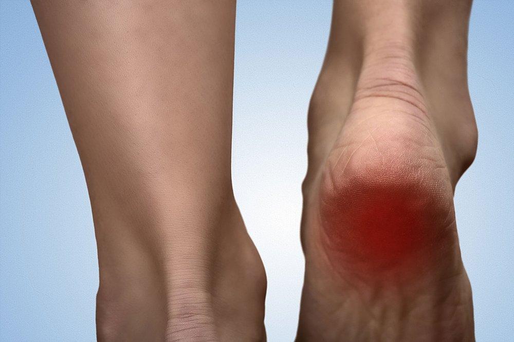 45715316_L_heel_pain_feet.jpg