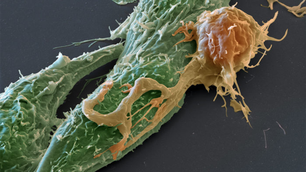 A T-cell receptor (orange) binds to a cancer cell (green)  Eye of Science/ Science Source