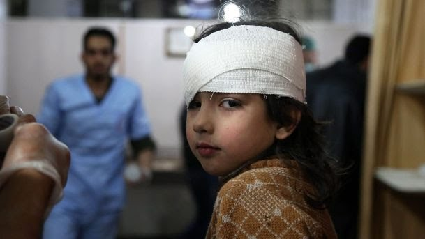 Wounded girl receiving treatment in Ghouta | Ammar Suleiman/AFP
