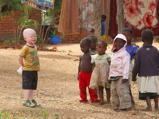 At his family home, Cassim Jaffalie, a three year old boy with albinism, stands with his friends on May 23, 2016. Razik Jaffalie, the boy's father, stopped working as a bicycle taxi operator so that he could protect his son from attacks. Photo: Tsvangirayi Mukwazhi/ AP via USA Today
