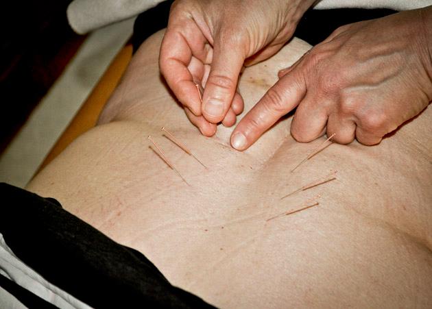 akupunktur bevisad effekt