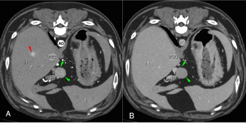 Figura 2.      Imágenes de TAC postcontraste en plano transversal en ventana tejido blando en un perro con un insulinoma. Fase arterial (A) y fase venosa (B). Nódulo páncreático (flechas verdes) que realza en fase arterial y es isoatenuante respecto al resto del páncreas (P) en fase venosa. Nódulo hepático (flecha roja) que realza en fase arterial y no es visible en fase venosa, por lo que parece tratarse de una metástasis del insulinoma. AO: aorta, VCC: vena cava caudal, H: hígado, P: páncreas.