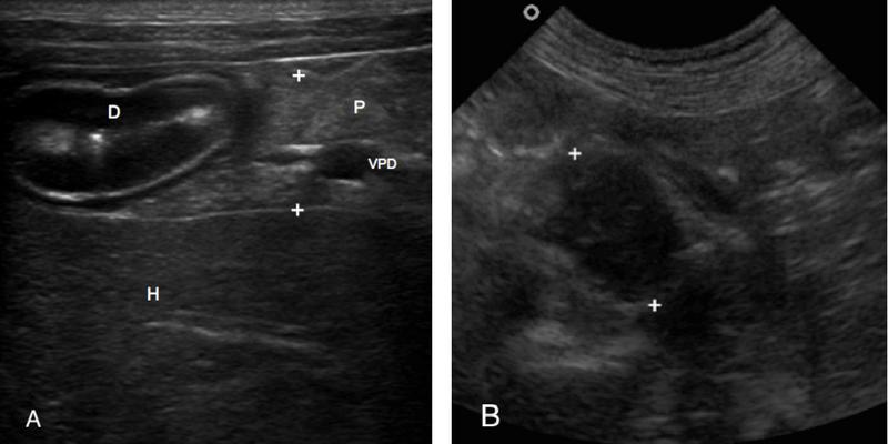 Fig 1 A y B.      Imagen ecográfica del páncreas normal en un perro (A). P: páncreas, D: duodeno, H: hígado, VPD: vena pancreáticoduodenal. Imagen ecográfica de un nódulo hipoecogénico páncreático de 1 cm que se correspondió con un insulinoma (B).