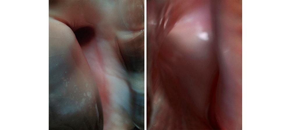 Flesh  Diptych N°2, 2004/2015 Tirages argentiques sur film duratrans, 2 caissons lumineux 144 x 104 cm chacun | C-prints on duratrans, 2 light boxes, 56,69 x 40,94 inches each  1/4
