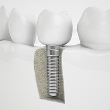 dental implant .jpg