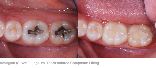 Amalgam-Silver-Filling-vs.-Tooth-colored-Composite-Filling2 Family Care Dentistry.png