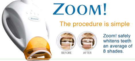 Zoom! Whitening is the #1 Patient Requested whitening brand.For a limited time, we are offering the procedure for ONLY $399! You will also receive a set of custom trays for maintenance whitening. - Expires March 30th, 2018. Please call for details.