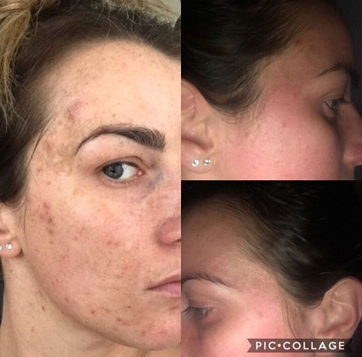 Acne and pigmentation improvements after 3 peels