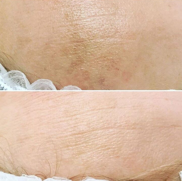 hyperpigmentation removed by 3 chemical peels