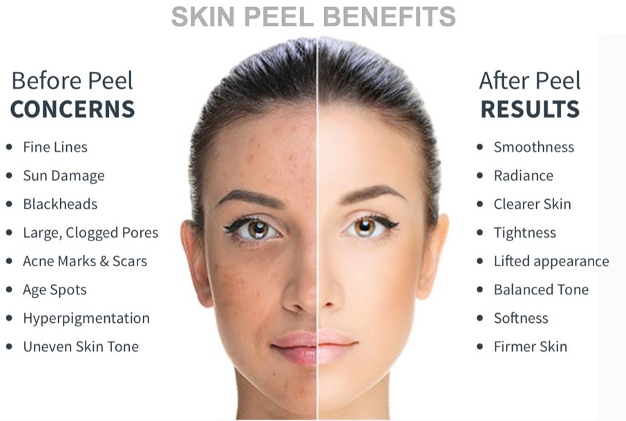 Skin peel concerns and benefits; before and after (results will vary)