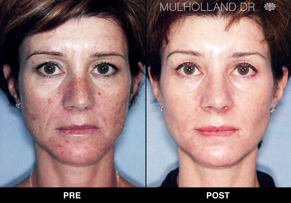 triniti_001.3_Dr.Mulholland_3-months-post-5-triniti-treatments.jpg