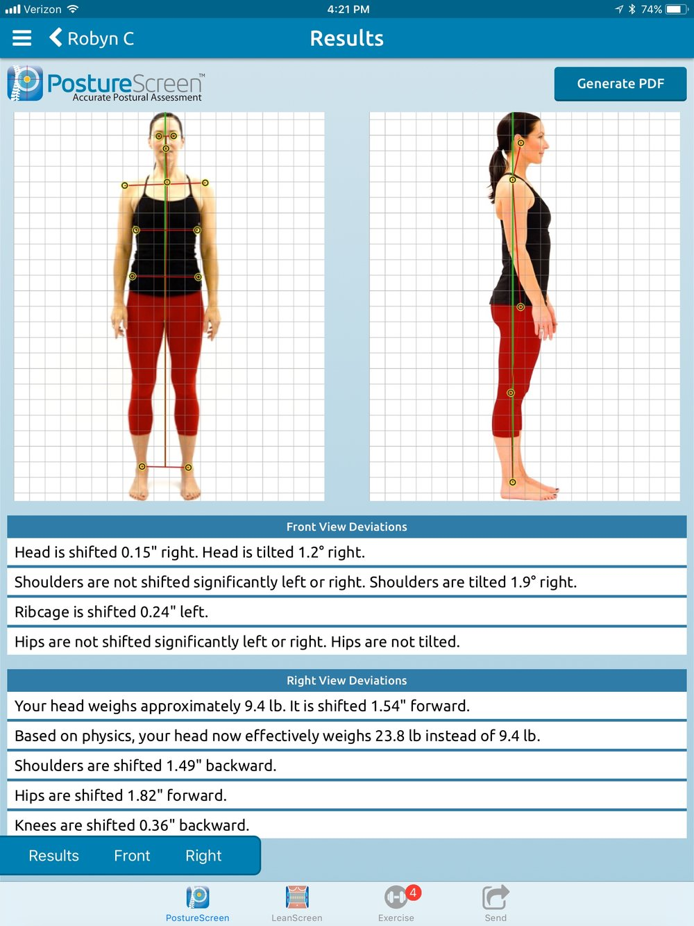 I use digital technology to assess posture  A picture really is worth 1000 words  Really clear documentation of treatment efficacy and changes over time/situations affecting your structure