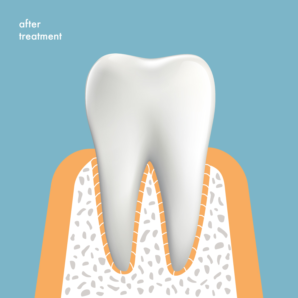 Tooth after successful treatment, without gum disease or pockets