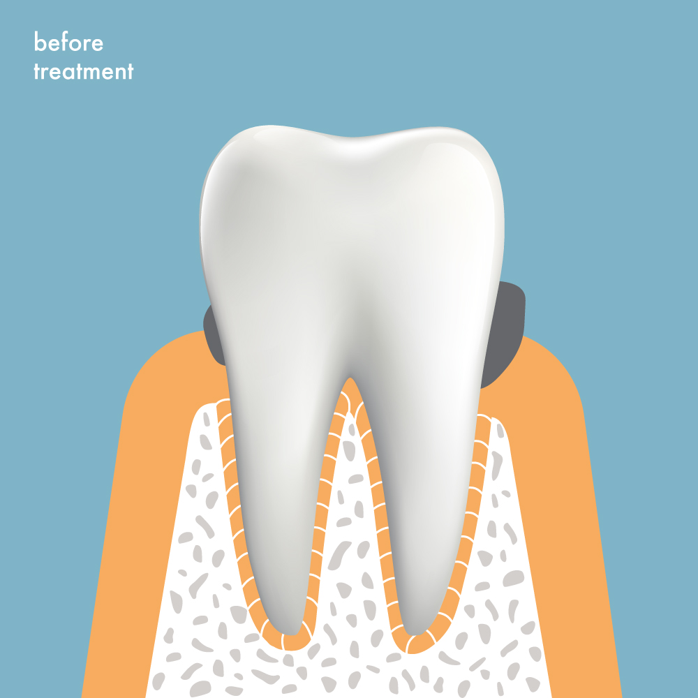 Tooth before treatment, with gum disease and pockets