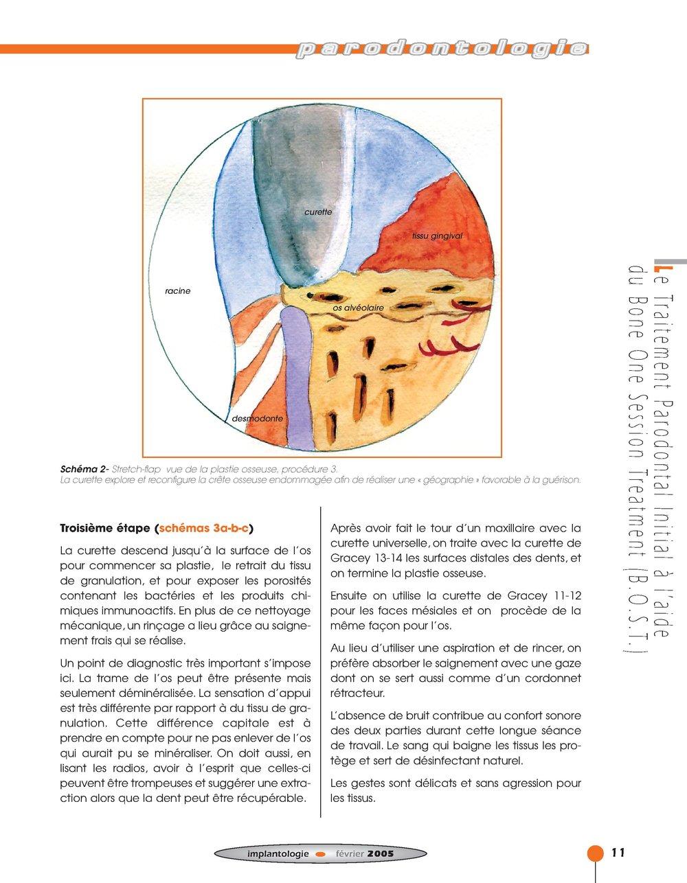Implantologie BOST Article 14 BLZ-5.jpg