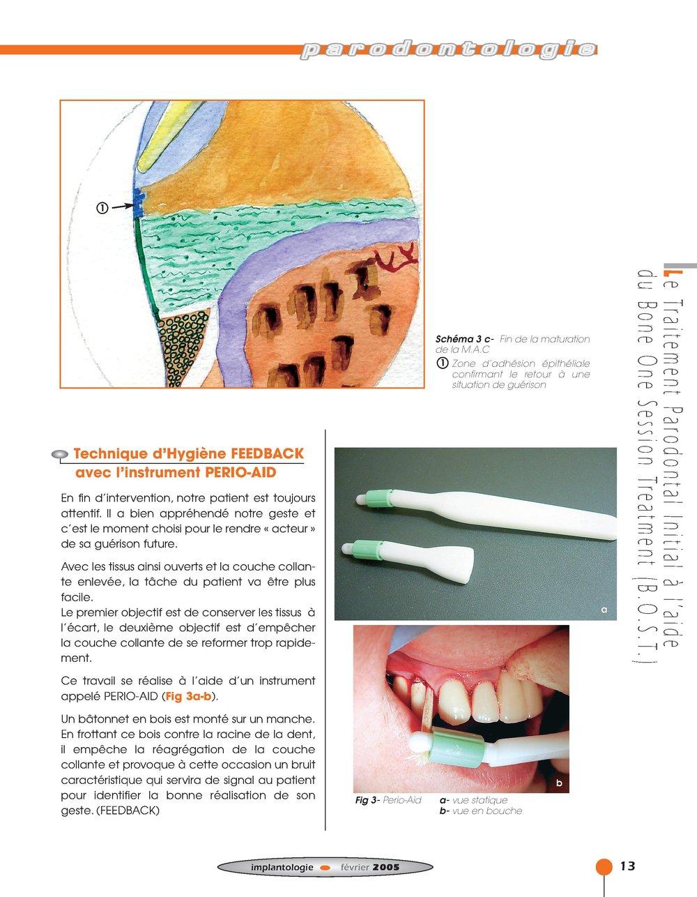Implantologie BOST Article 14 BLZ-7.jpg