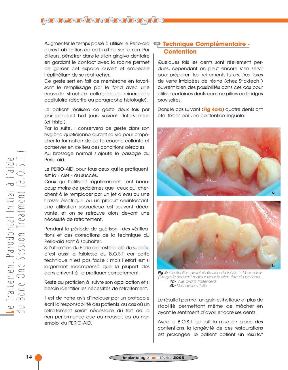 Implantologie BOST Article 14 BLZ-8.jpg