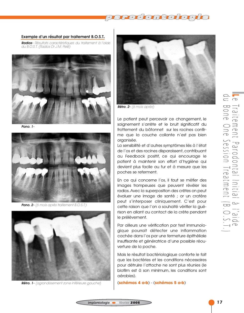 Implantologie BOST Article 14 BLZ-11.jpg