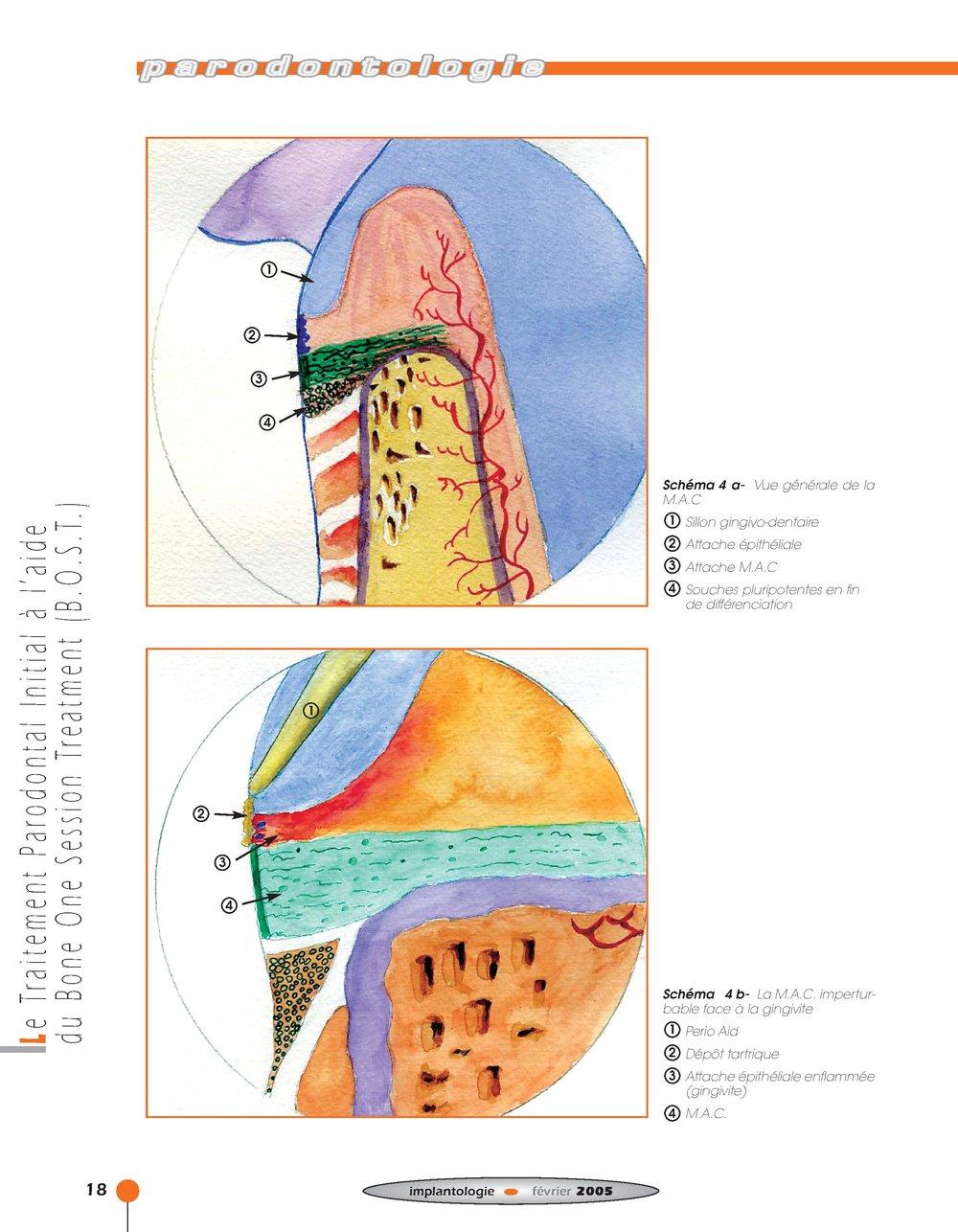 Implantologie BOST Article 14 BLZ-12.jpg