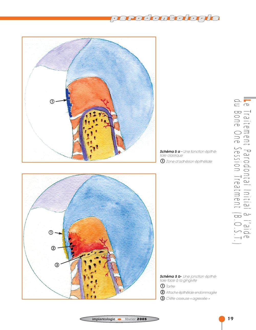 Implantologie BOST Article 14 BLZ-13.jpg