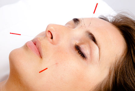 cosmetic acupuncture results before after