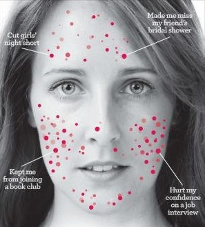 Acupuncture helps acne rosacea eczema