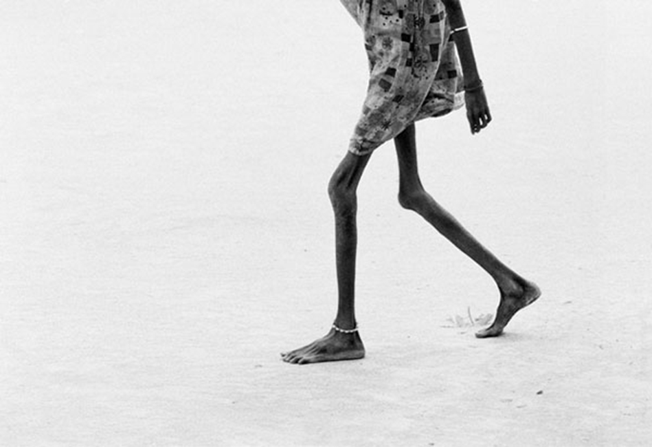 Tom Stoddart - The emaciated legs of a girl in Ajiep, Sudan