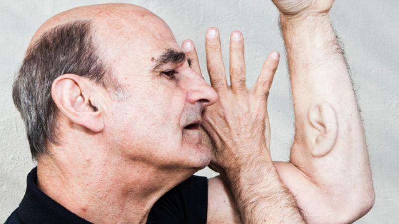 Stelarc, aki egy műfület ültettetett be a karjába