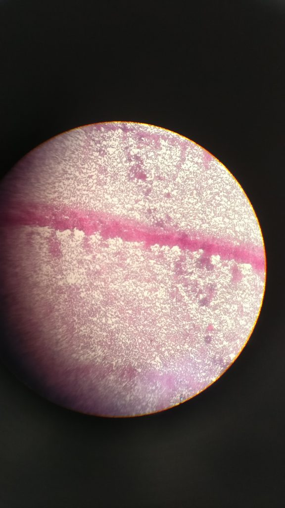 cultured growth of bacteria under a microscope