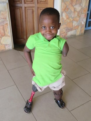 Blessing, Pictured at the Orthopedic Training Center, Flashes a Grin and a Glimpse of Her New Prosthetic Legs.  Credit: Orthopedic Training Center