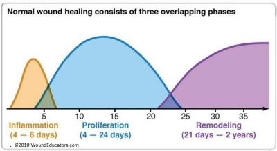 Image credit: woundeducators.com/phases-of-wound-healing/