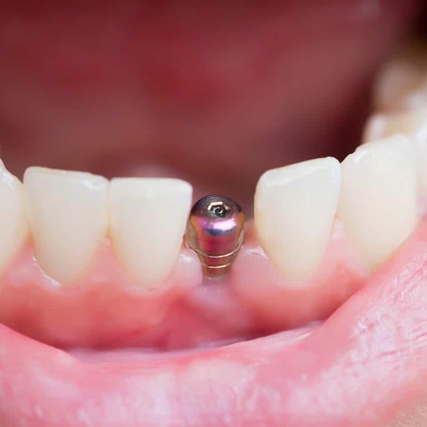 Tooth implants3.jpeg