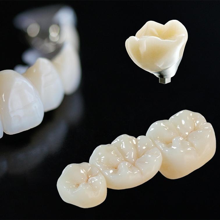 Dental prosthetics.jpg