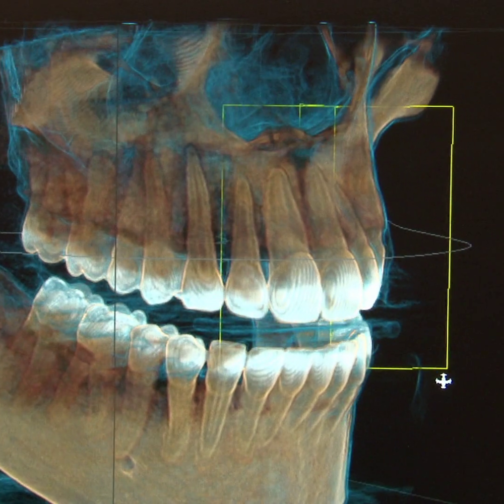 3d-dental-xray-1.png