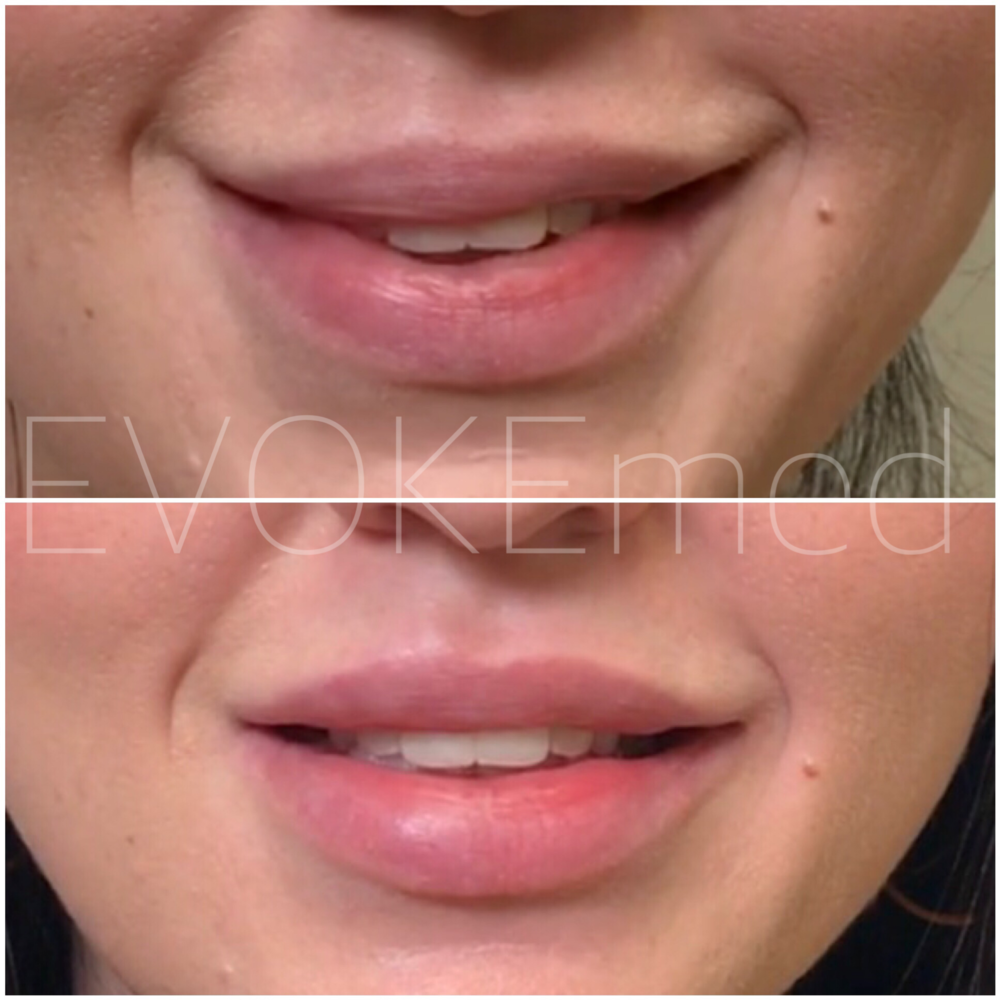 This patient had incorrectly placed filler which was causing lip asymmetry and affecting her smile. Two step procedure was done: first: dissolving incorrectly placed filler, second: re-injecting her lips to give a beautiful smile.