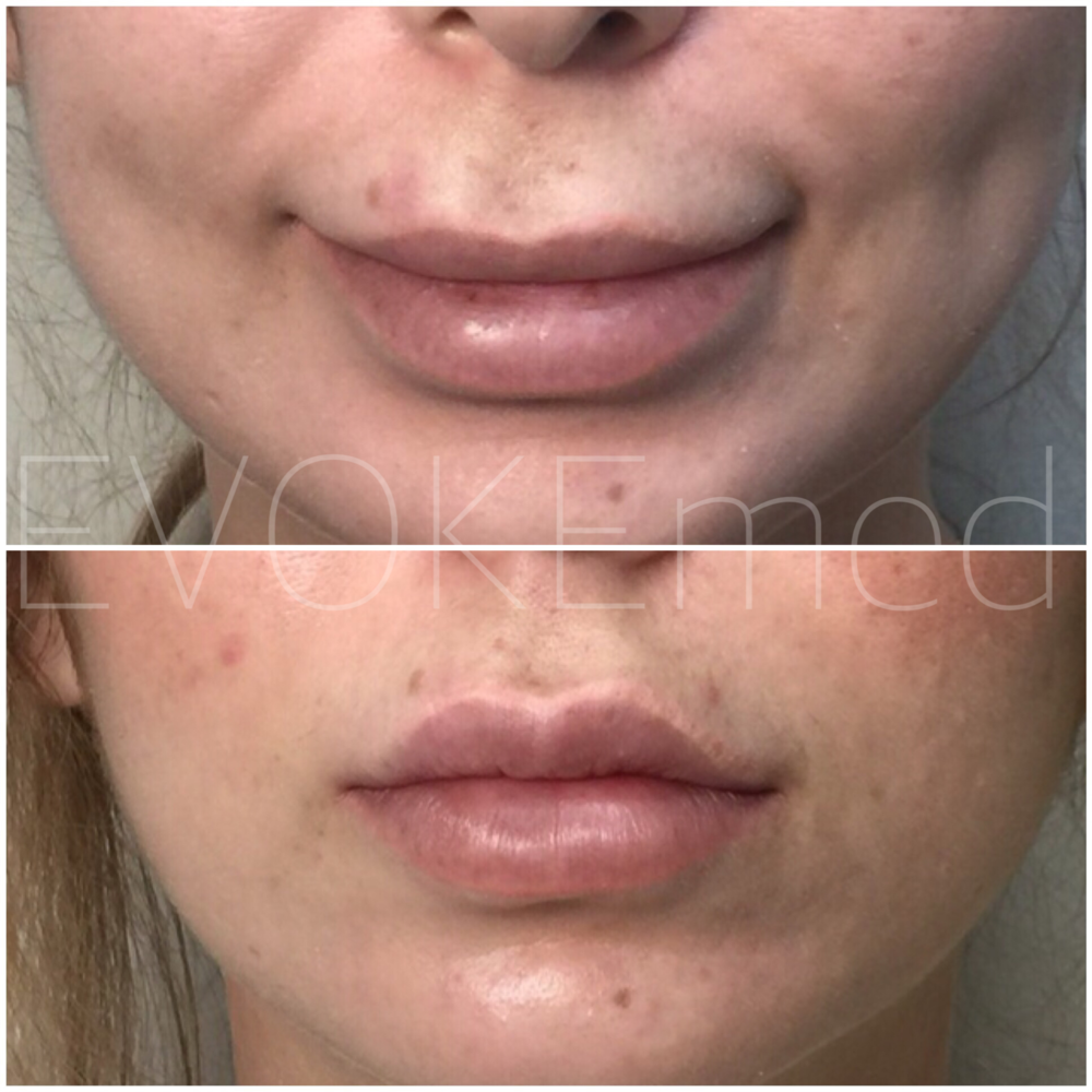 """This patient had incorrectly injected boarder of the upper and lower lip as well as over filled NLF which made her lips appear puffy and """"duck like"""". Filler was dissolved, and then re-injected to enhance her beautiful lip shape."""
