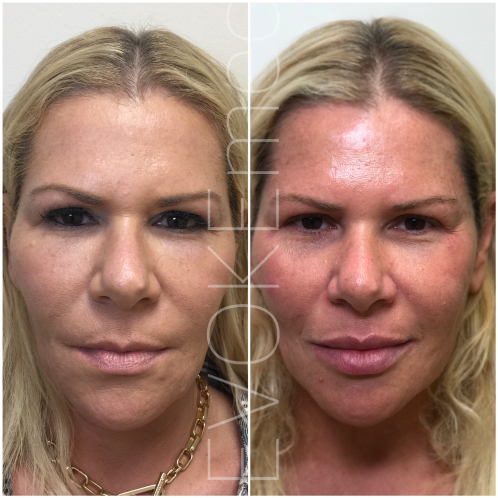 This patient has been getting filler injections from another provider. Multiple areas of her face were overfilled making her look older and less like herself. First: filler was dissolved - under eye and cheek bone area, above and below lip area, NLF, jowls. Second: we re-injected some of her features enhancing her beauty. Notice she looks much younger after correction treatment.