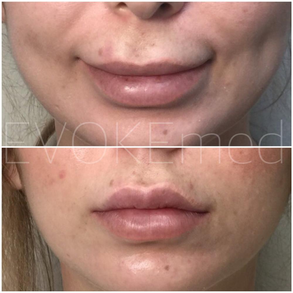 Botched Lip Filler Correction