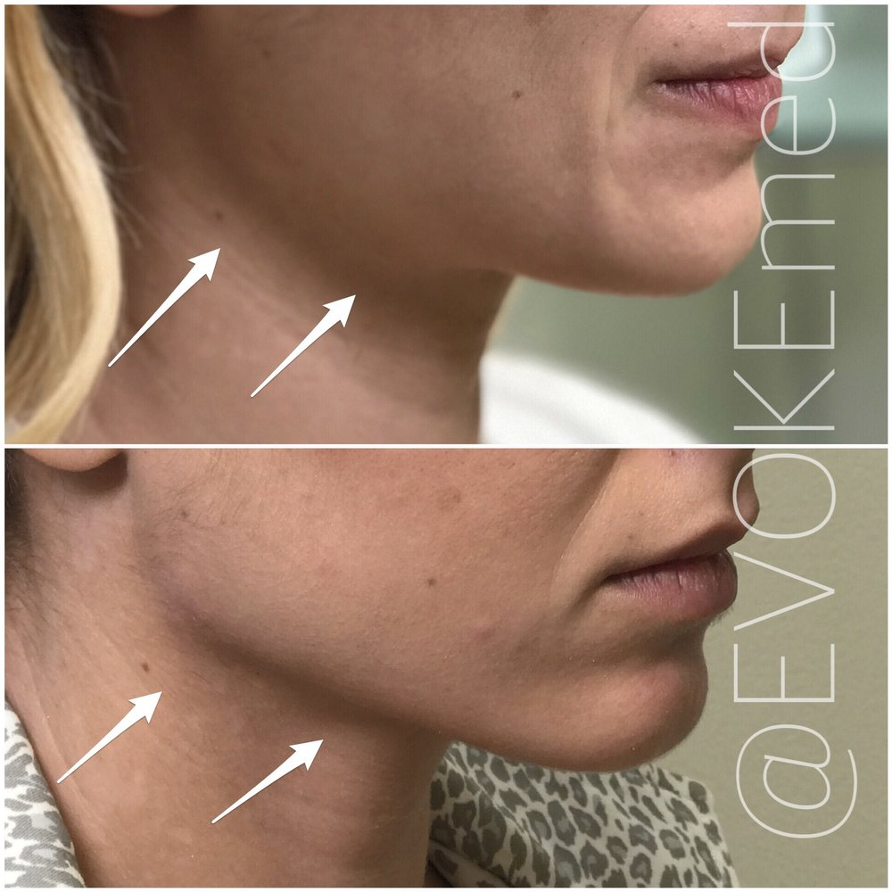 Jawline Contouring with Filler