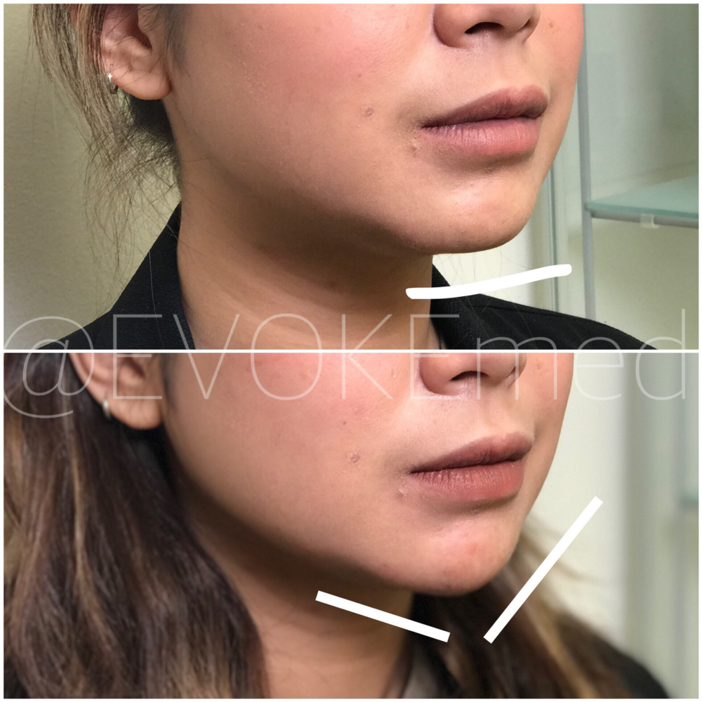 Chin Augmentation with Filler