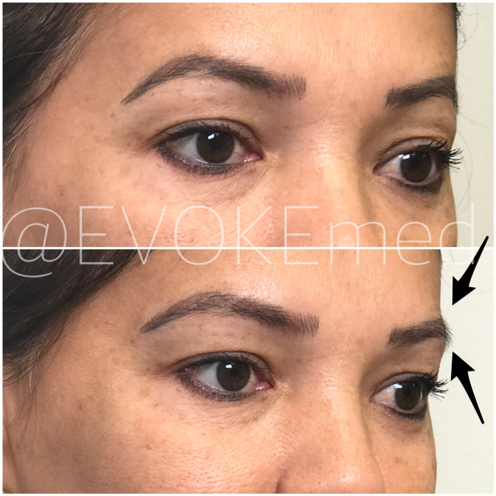 Brow Lift with Filler