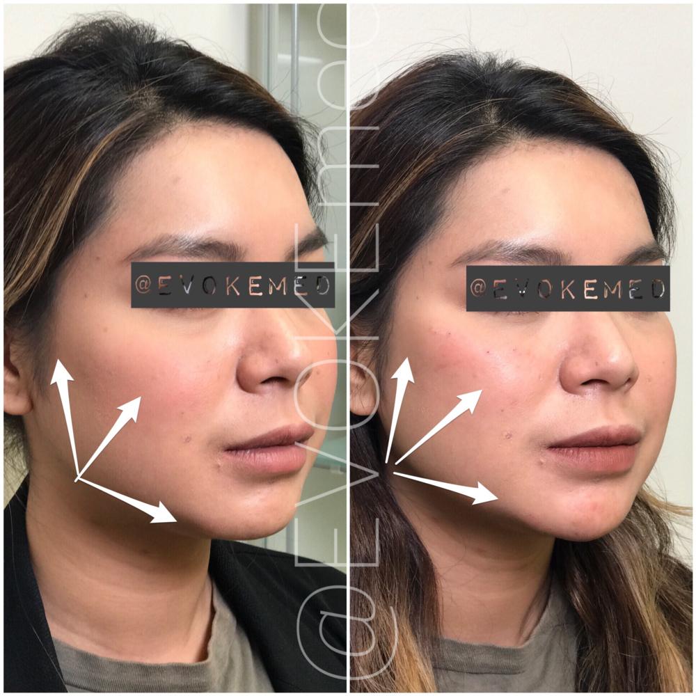 Facial Contouring with Filler