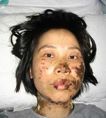 瀋陽法輪功學員高蓉蓉被電棍毀容後被進一步迫害致死(明慧網)