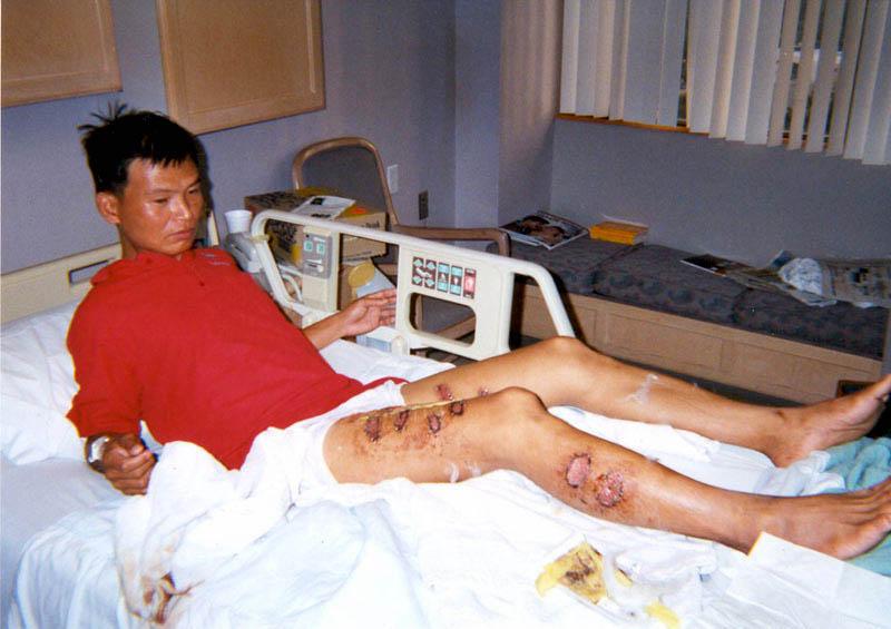 廣東法輪功學員覃永潔曾鐵條烙、燙至小便失禁。雙腿有十三處三級燒傷。(明慧網)