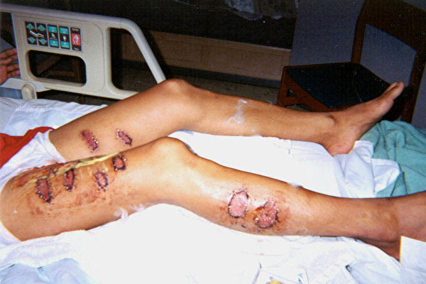 廣東法輪功學員覃永潔曾鐵條烙、燙至小便失禁。雙腿有十三處三級燒傷。 (明慧網)