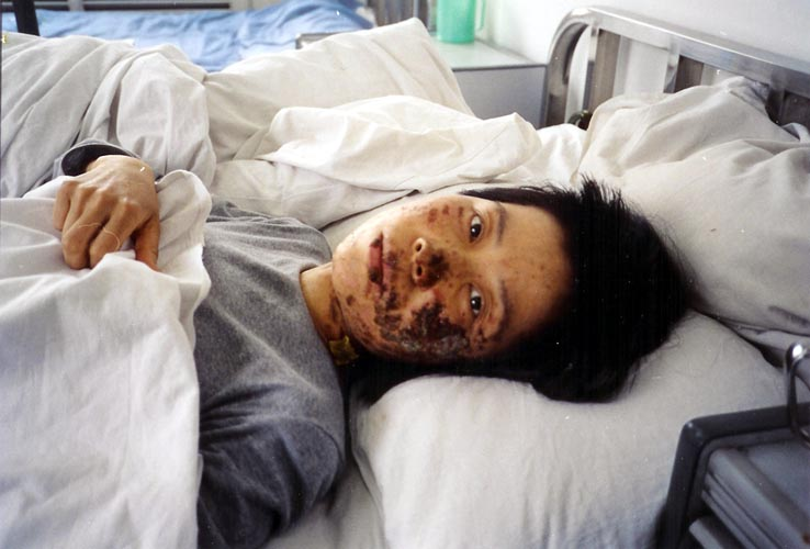Gao Rongrong was brutally tortured by means of electric baton on May 7, 2004. Her face was severely burnt and disfigured from the torture. The photos were taken ten days after the torture. 法輪功學員高蓉蓉於2004年5月7日被警察電擊面目至毀容。這張照片攝於十天之後。高蓉蓉在歷經各種酷刑之後,於2005年6月16日悲慘離世。(圖片來源:明慧網)